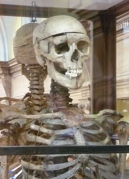 Skeleton of William Burke exhibited in the Anatomy Museum of the Edinburgh Medical School. Image: Kay Traynor via Wikipedia