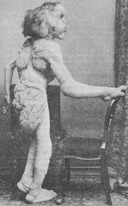 Merrick photographed in 1888 - British Medical Journal article 1890 - Public domain
