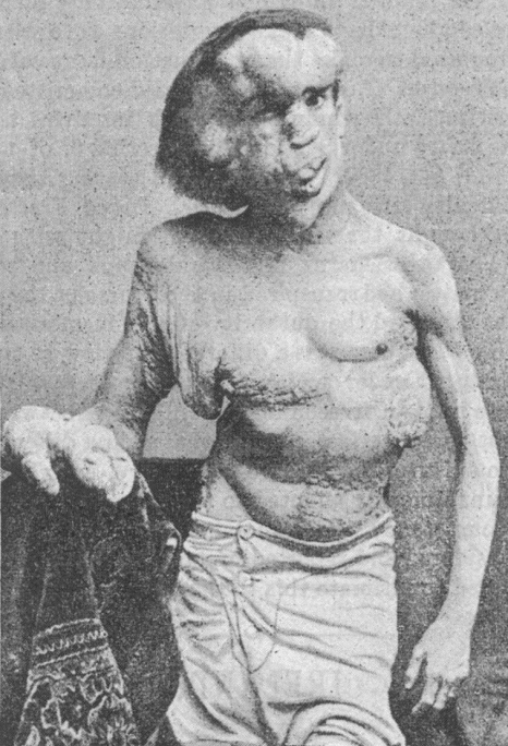 Merrick photographed in 1889, the year before his death - British Medical Journal publication 1890 - Public domain